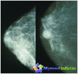 Normal bryst (til venstre) og brystkreft (til høyre) avbildet mammografi