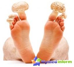 svamp i negle på fødder