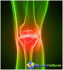 Osteoarthritis of the joints