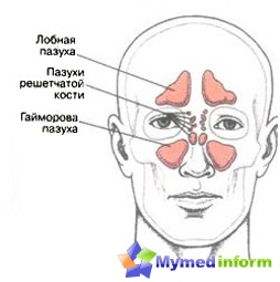 Rhinitis is not necessary to run to the inflammation does not spread to the maxillary, frontal sinuses and dr.oblasti