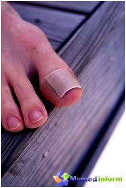 Treatment of ingrown toenail