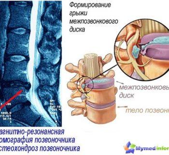 osteocondrosis