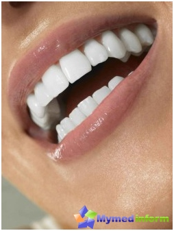 gums, teeth, periodontitis, mouth, dentistry, dental care
