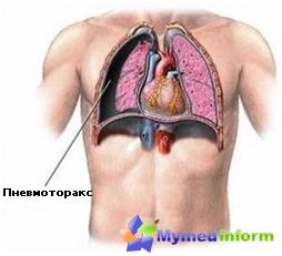 пнеумоторакс