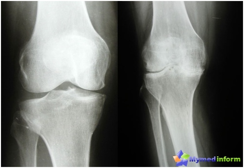Osteoarthritis knee early (left) and late (right) stage of the disease