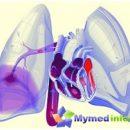 -embolia pulmonar