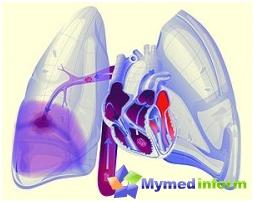 pulmonar por embolia