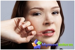 Sjogren's disease, an inflammation of the glands, immunity, tear glands, salivary glands