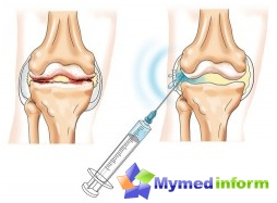 diseases of the joints, intraarticular injection, hyaluronic acid, joints fermatron