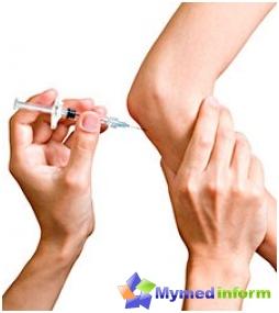 Choroby stawów, dostawowego wstrzyknięcia, kwasu hialuronowego, stawów fermatron