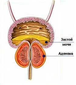 simptome inceput de prostata