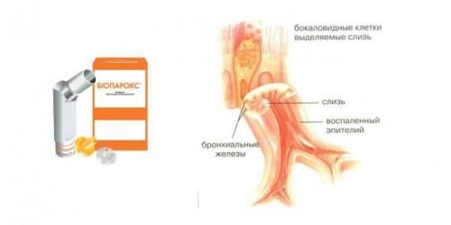 angina de pecho, bioparoks, la medicina, la nariz que moquea