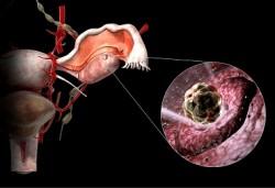 signs-ovulação