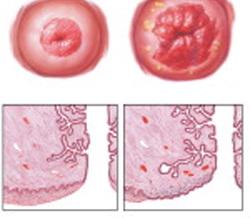 erosión cervical
