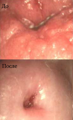 The cervix before and after laser therapy