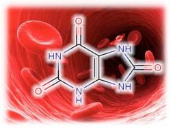 хиперурикемија, мокраћна киселина, мокраћна киселина дијатеза, гихт, бубрега, Урологија