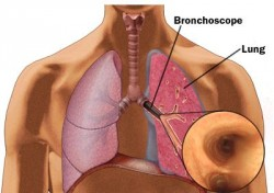 Bronchien, Bronchoskopie, Diagnose, Lungen-