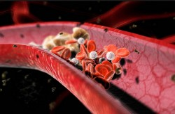 atherosclerosis, vascular disease, vessels, cholesterol, cleaning vessels
