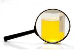 Analysis of urine tests, urine, ureter, Nechiporenko