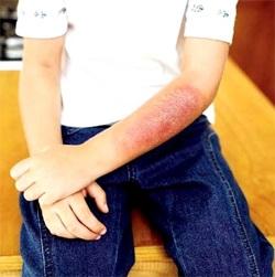 Brandwonden - brandwonden die later blootstelling aan de vlam lichaam, direct huidcontact met voorwerpen of vloeistoffen aan hoge temperaturen verhit verschijnt