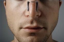 afgeweken septum, neus, nasale peregorodska, breuken
