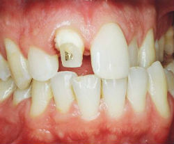 Dental crowns, which is better to put