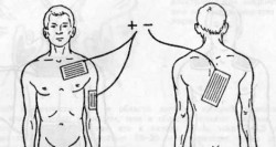 ionogalvanizatsiya, ionotherapy behandling elekstroforezom, elektroforese