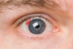 eye, bleeding in the eye, ophthalmology, vessels