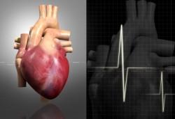 de derivación cardiaca de la cirugía