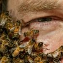 apitherapy-treatment-bees