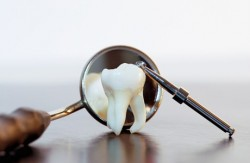 tenner, påvirket tenner, tannbehandling, tanntrekking, tannpleie