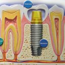 implantatie-tooth
