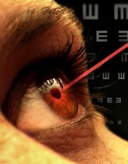 laser-correction-vision