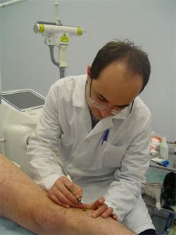 Det mest effektive er i alle henseender den laseren fjernelse av fødselsmerker