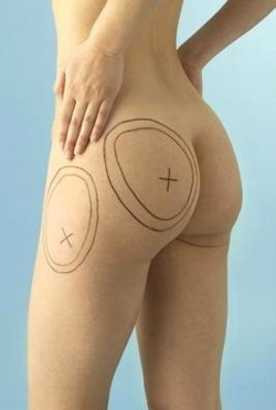 What you need to know about liposuction, liposuction