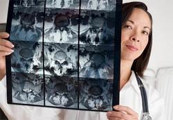 magnetna rezonanciju-imaging