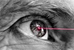 corrección de la visión con láser