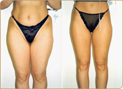 Before (left) and after (right) liposuction