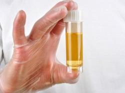 Analizę moczu, badania moczu OAM, nerek, fosforany