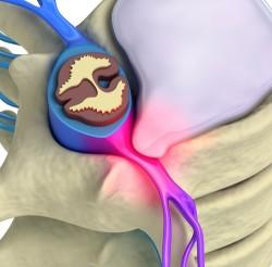 nervio, neurología, neurología, la lesión del nervio pellizcado
