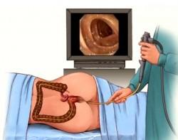 gastroenterologii, jelita grubego, kolonoskopia badania