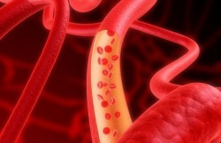 thick blood, blood, blood thinning, blood vessels