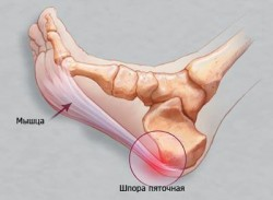 treatment-heel-spurs
