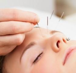 acupuncture, acupuncture, alternative medicine, therapy