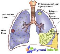 TB-Behandlung