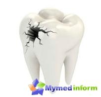 Como para começar a cárie dentária? - Com a cárie dentária!