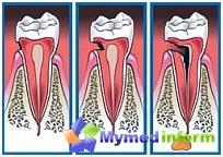 Фазе пропадања зуба: дубина патолошког процеса