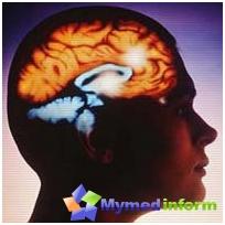 Маин симтоми и методе дијагностике можданог апсцеса