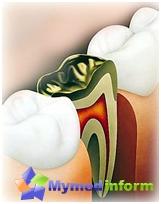 Остеомиелитис вилице, Симптоми и лечење