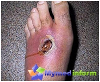 diagnosis and treatment of gas gangrene